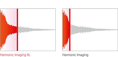 kawai harmonic imaging xl vs harmonic imaging